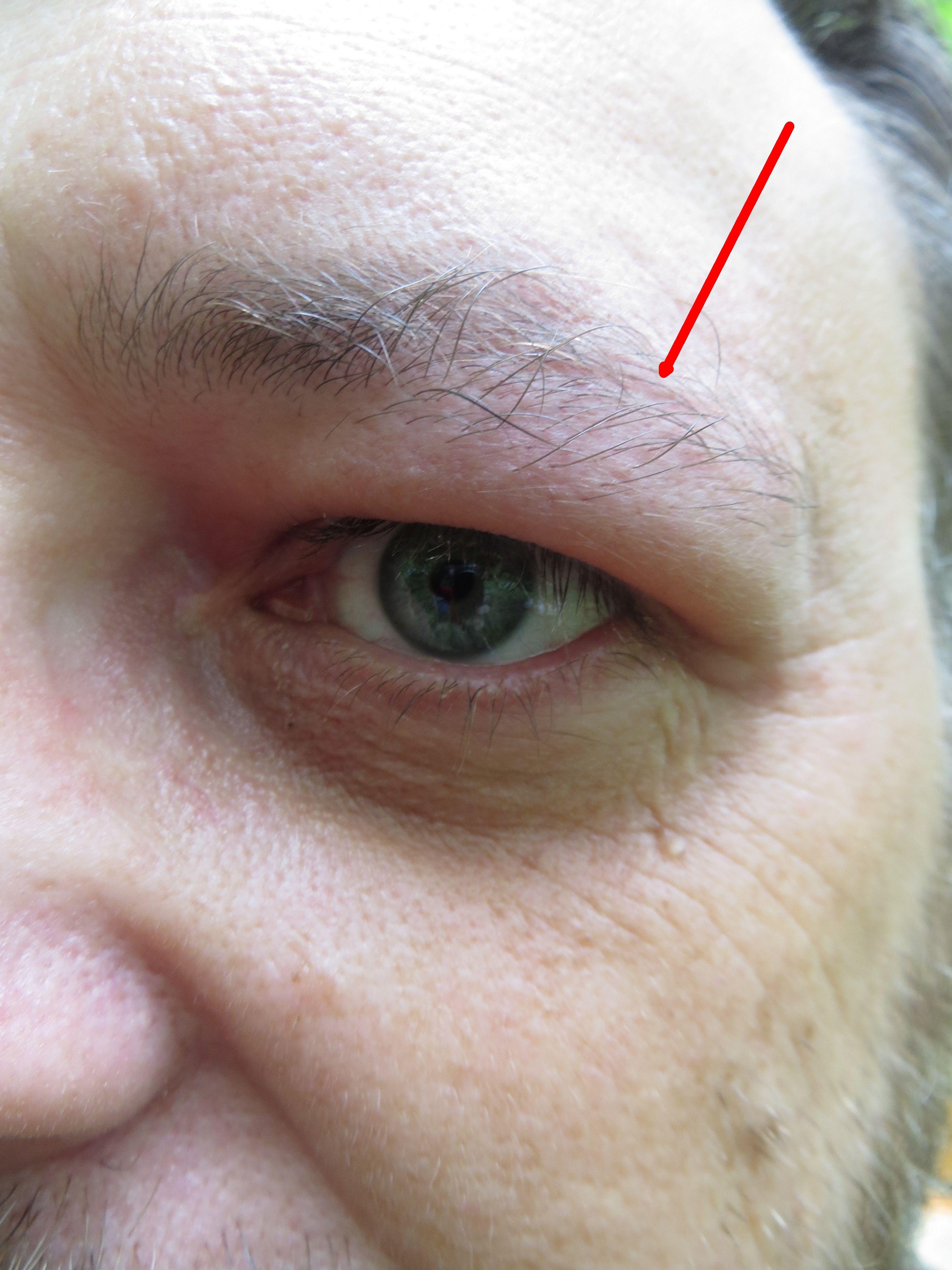 bienenstich allergie schwellung